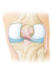 Posterior Cruciate Ligament (PCL)