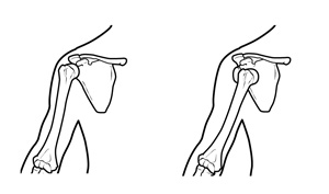 Chronic Shoulder Instability Right: Head of the humerus dislocated to the front of the shoulder.