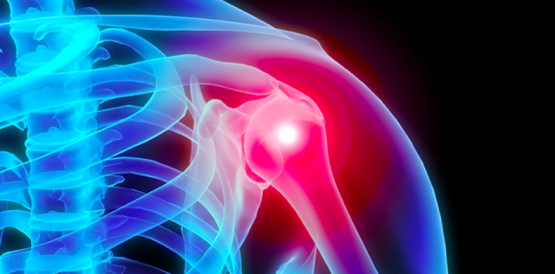 Dr. Bicos to talk on shoulder pain at The Community House