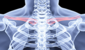 Clavicle FX