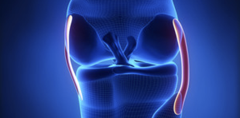 Combined Knee Ligament Injury (PLC)