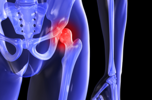 Hip Bursitis, Tendonitis, & Snapping Hip