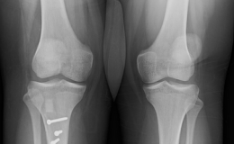 Patellar Realignment for Instability