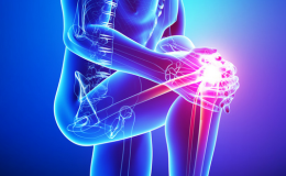 Painful or Unstable Kneecap