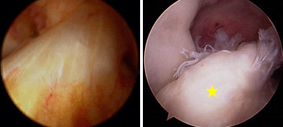 (Left) Arthroscopic picture of the normal ACL. (Right) Arthroscopic picture of torn ACL [yellow star]