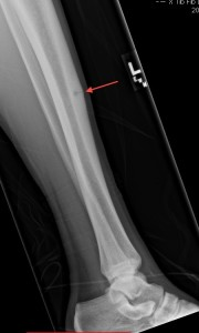 A stress fracture of the shin bone.  (Red arrow points to stress fracture)
