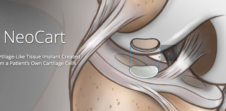Beaumont seeks participants for a research study of a cartilage tissue implant for knee injuries