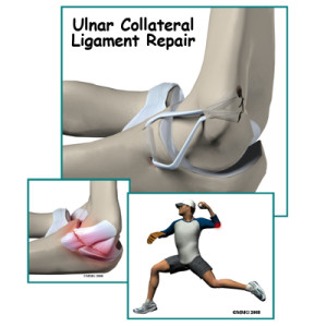 Ulnar collateral ligament repair -- Tommy John Surgery)