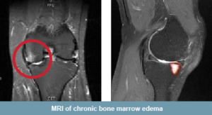 MRI of Bone Marrow Lesions (BMLs).  The bright white areas show stress in the bone that is a result of micro-cracks.  These cracks can be the result of early arthritis. (Taken from Zimmer Knee Creations Website)