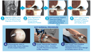 This is a graphic showing the subchondroplasty procedure.  (Taken from Zimmer Knee Creations website)