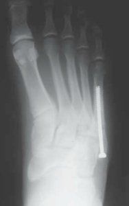 This is the surgical fixation for a Jones fracture.  A screw can be seen in the 5th metatarsal bone.  (Note:  This is NOT a picture of Kevin Durant's foot)