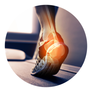 Ankle and Achilles Tendon Injuries