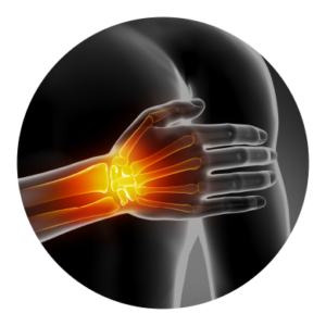 Hand and Wrist Injuries and Conditions
